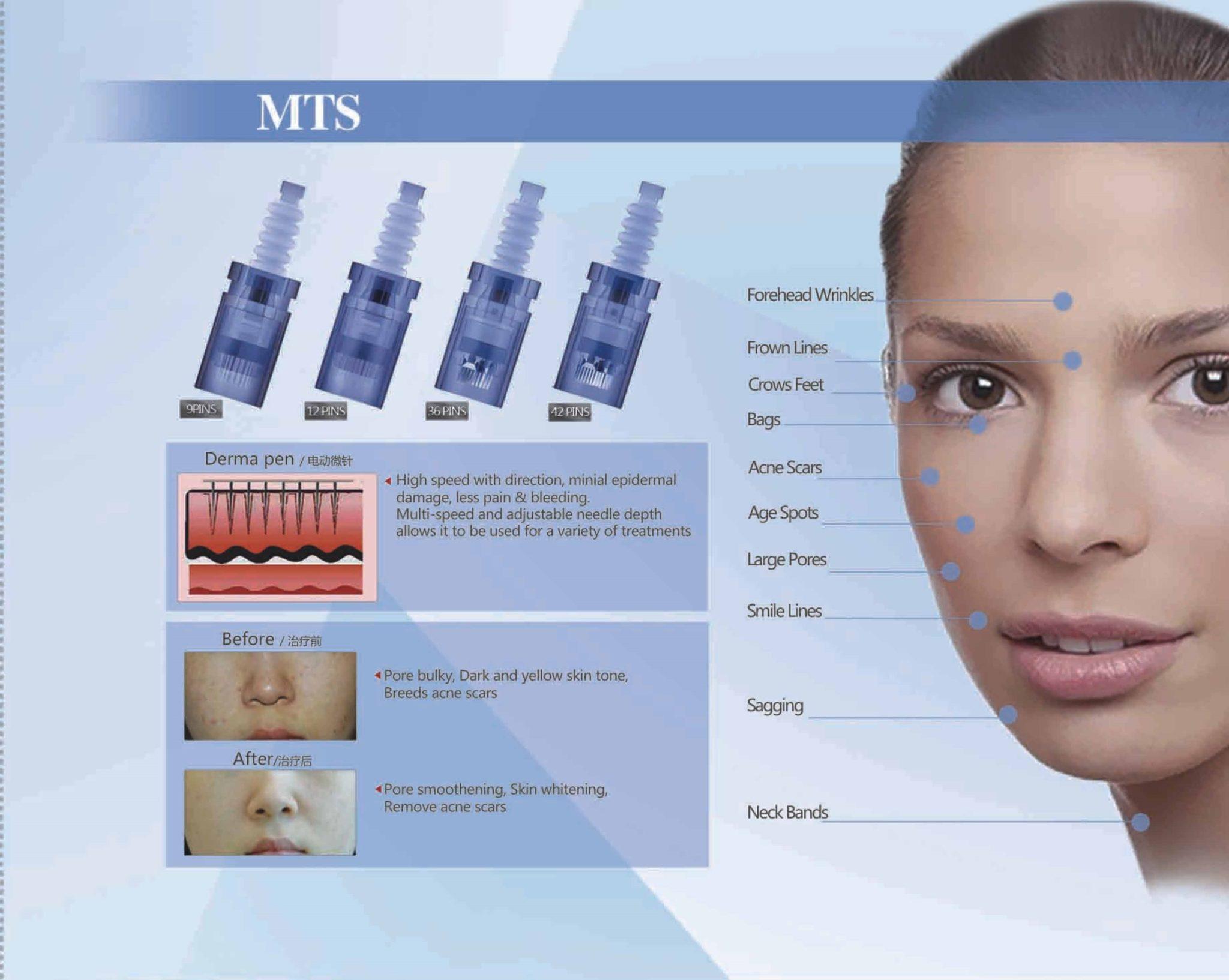 A6 leaflet MTSmm
